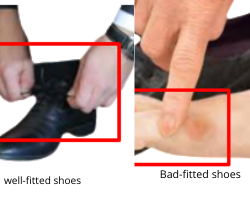 how to prevent small toe holes in shoes
